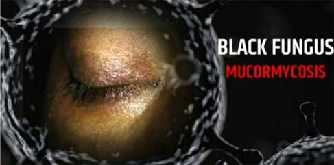 black-fungas